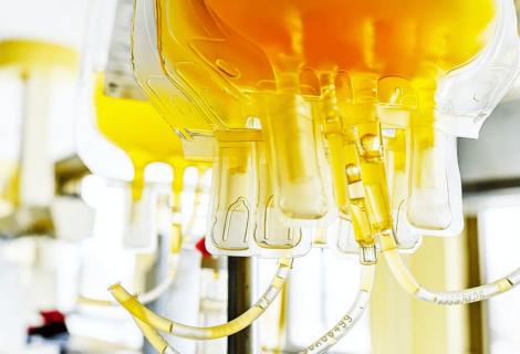 ¿Ayuda el plasma de donantes a tratar la COVID-19 aguda?