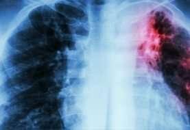 Tuberculosis y covid-19: ¿el nuevo dúo maldito?
